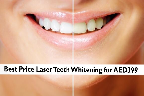 Dental Offer: Teeth Whitening in JLT - Best Price AED399