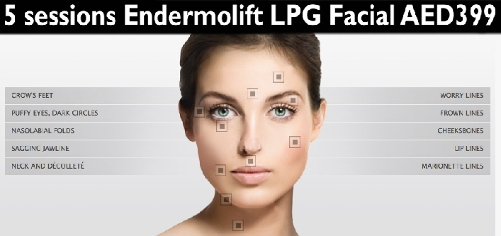 Face Lift, Anti Aging & Face Shaping -  5sessions Endermolift LPG Treatment