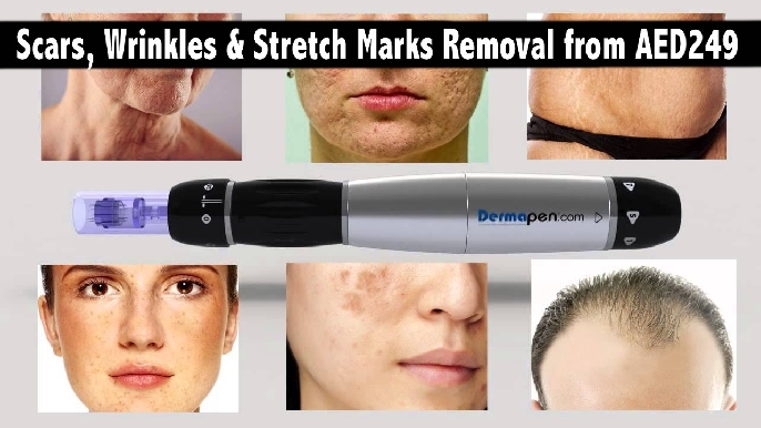 Scars & Stretch Marks Removal from AED249 | Micro Needle Mesotherapy