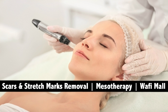 Wafi Mall - Scars & Stretch Marks Removal Mesotherapy Session AED249