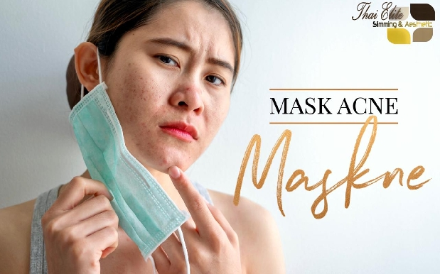 Maskne Treatment - Remove Acne & Skin Irritation caused by Face Mask